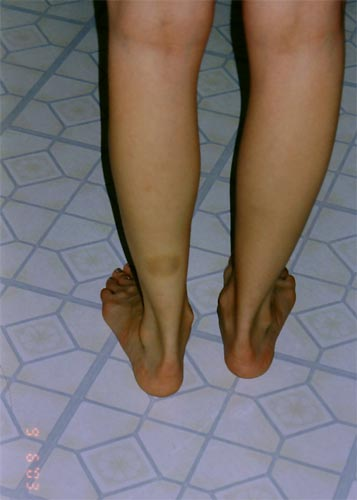 Bruises on Back of Calf http://in2worlds.net/anomalous-markings